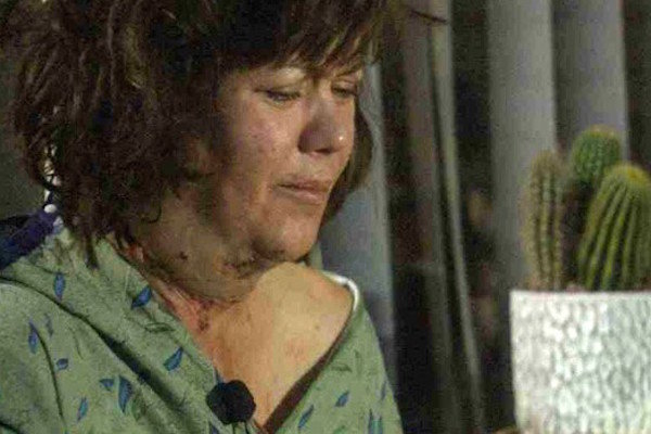 The wounds on Victoria Mendez's neck are visible.  (Photo: AZ Family)